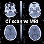 CT Scan vs MRI and Personal Injury